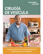 Gallbladder Surgery Book (Spanish)