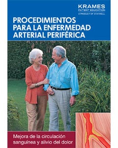 Procedures for Peripheral Arterial Disease (Spanish)