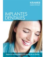Understanding Dental Implants (Spanish)