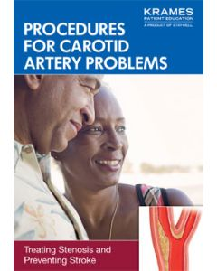 Procedures for Carotid Artery Problems