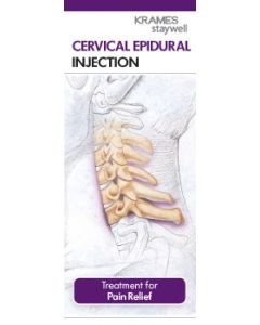 Cervical Epidural Injection